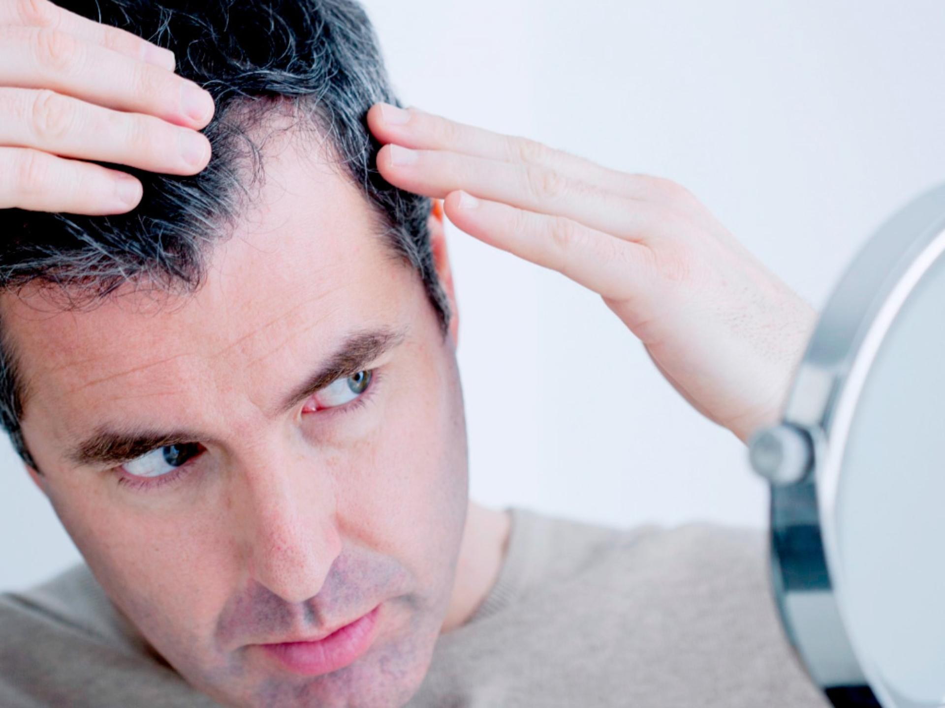 ¿Cómo son los implante de pelos para hombres?